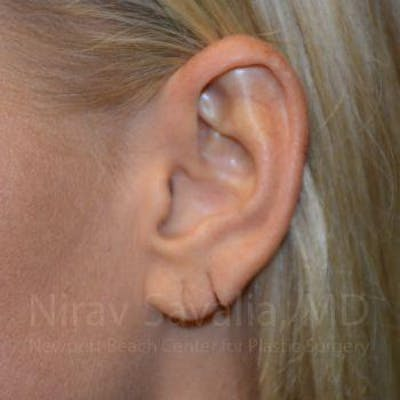 Torn Earlobe Repair / Ear Gauge Repair Gallery - Patient 1655792 - Image 1