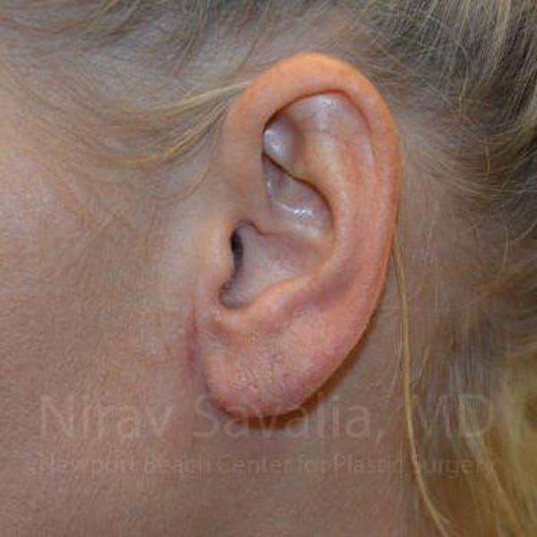 Torn Earlobe Repair / Ear Gauge Repair Gallery - Patient 1655792 - Image 2
