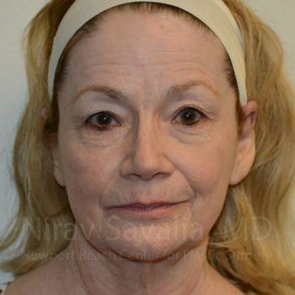 Facelift Gallery - Patient 1655795 - Image 1