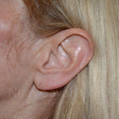 Torn Earlobe Repair / Ear Gauge Repair Gallery - Patient 1655794 - Image 1
