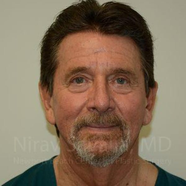 Eyelid Surgery Gallery - Patient 1655796 - Image 1