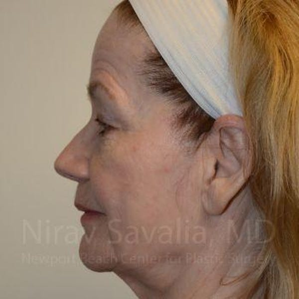 Facelift Gallery - Patient 1655795 - Image 3