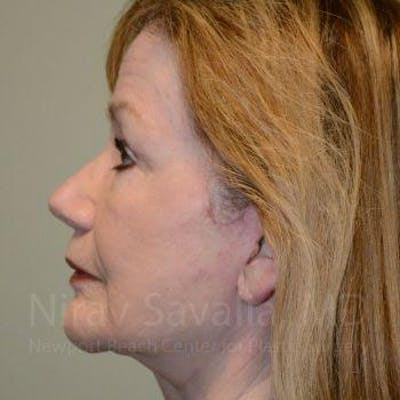 Facelift Gallery - Patient 1655795 - Image 4