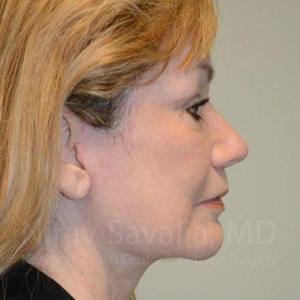Facelift Gallery - Patient 1655795 - Image 6