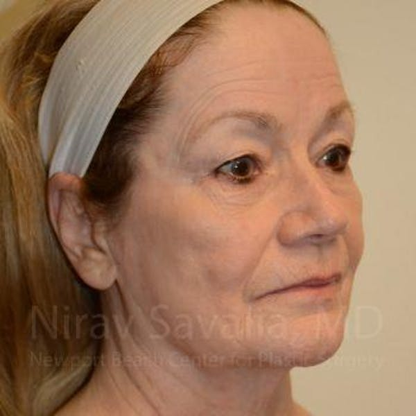 Facelift Gallery - Patient 1655795 - Image 7
