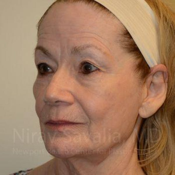 Facelift Gallery - Patient 1655795 - Image 9