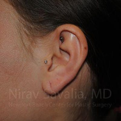 Torn Earlobe Repair / Ear Gauge Repair Gallery - Patient 1655798 - Image 1