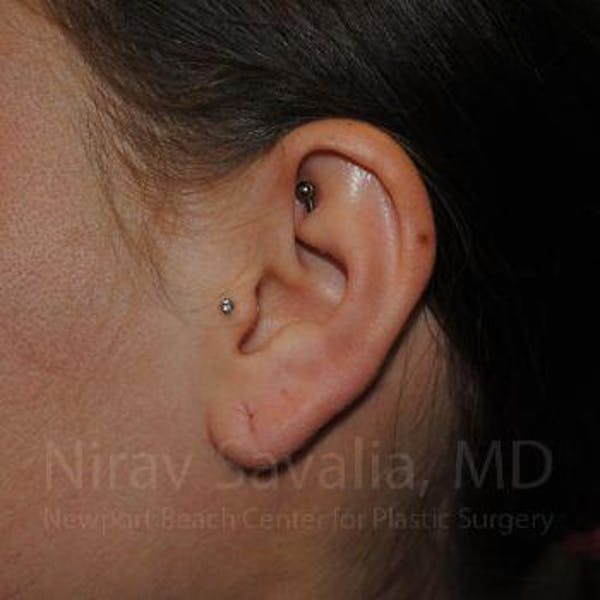 Torn Earlobe Repair / Ear Gauge Repair Gallery - Patient 1655798 - Image 1