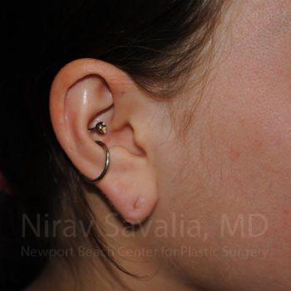 Torn Earlobe Repair / Ear Gauge Repair Gallery - Patient 1655798 - Image 3