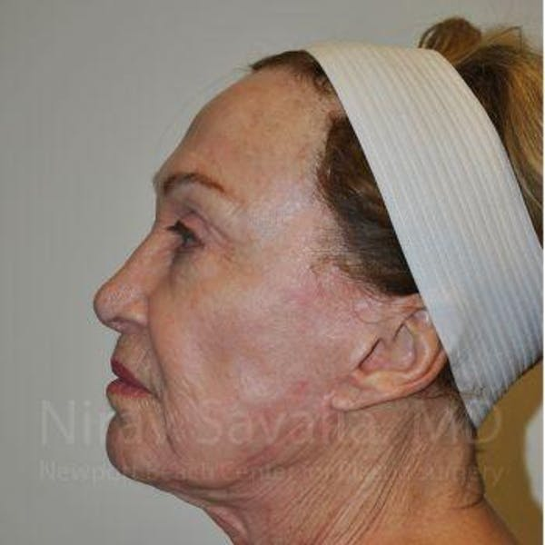 Eyelid Surgery Gallery - Patient 1655799 - Image 5