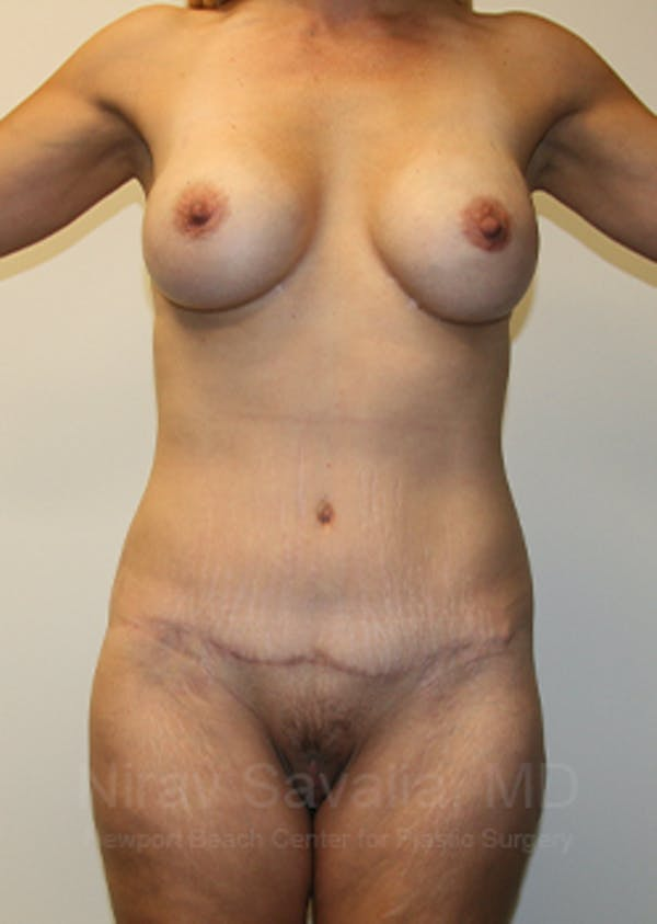 Mommy Makeover Gallery - Patient 1655630 - Image 2