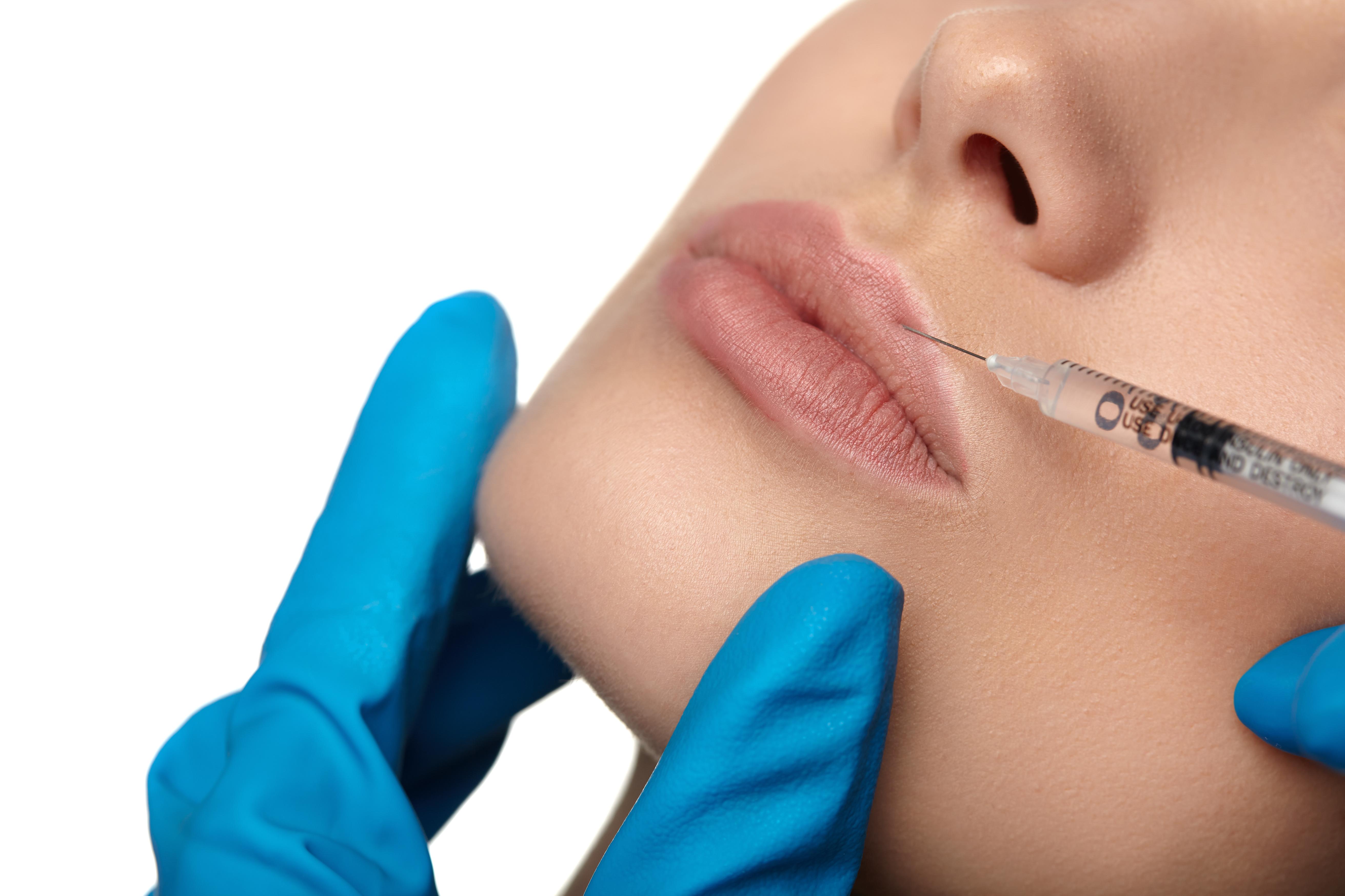 non-invasive lip augmentation