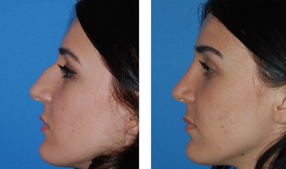 Rhinoplasty Gallery - Patient 1789782 - Image 1