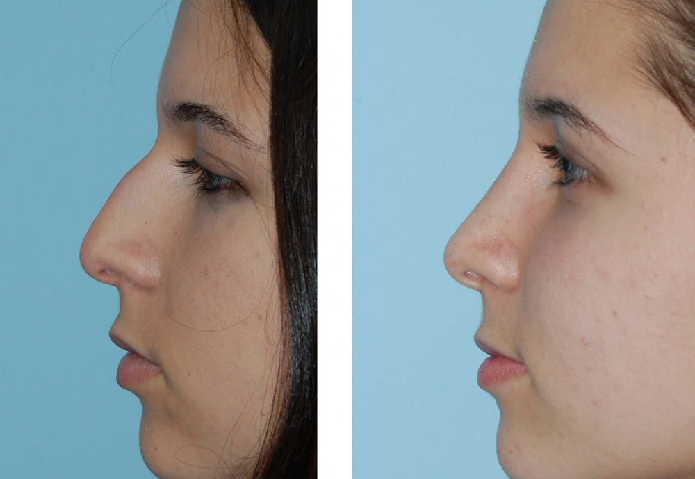 Rhinoplasty Gallery - Patient 1789786 - Image 1