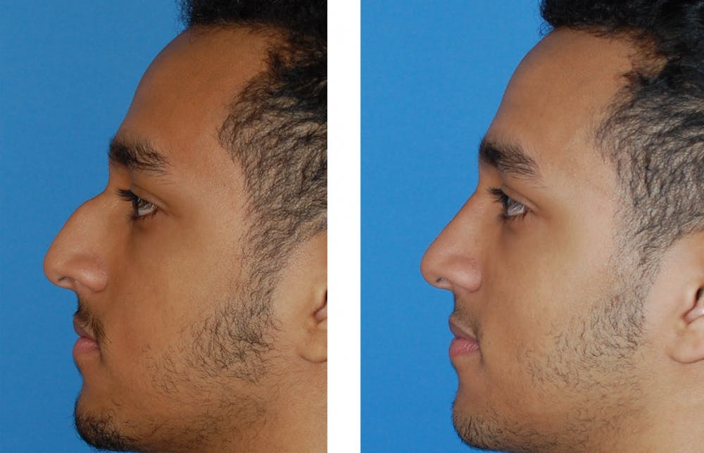 Rhinoplasty Gallery - Patient 1789789 - Image 1