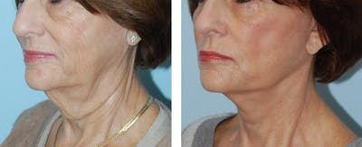 Face Gallery - Patient 1790078 - Image 1