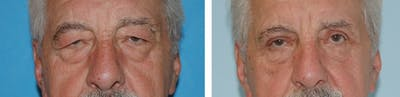 Eyes Gallery - Patient 1790270 - Image 1