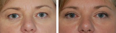 Eyes Gallery - Patient 1790271 - Image 1