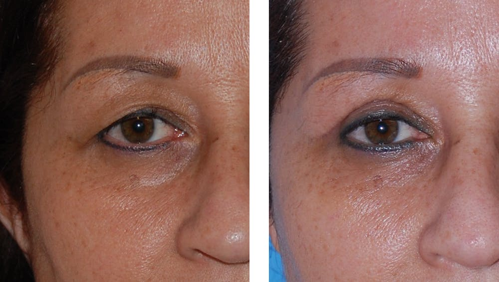 Eyes Gallery - Patient 1790273 - Image 1