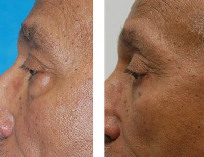 Eyes Gallery - Patient 1790272 - Image 1