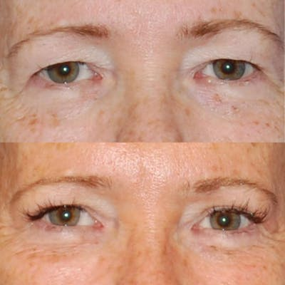 Eyes Gallery - Patient 1790328 - Image 1