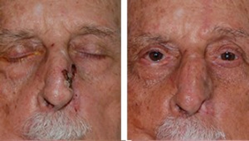 Reconstruction Gallery - Patient 1790371 - Image 2