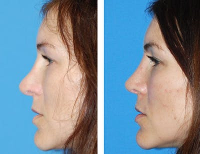 Revision Rhinoplasty Gallery - Patient 1909534 - Image 1