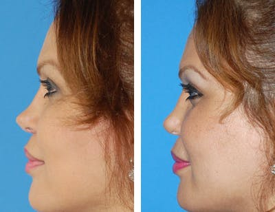 Revision Rhinoplasty Gallery - Patient 1909535 - Image 1