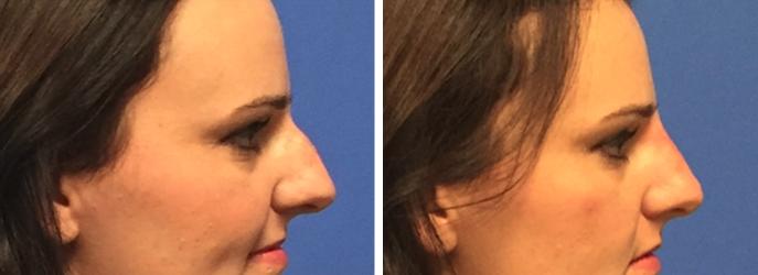 Non Surgical Nose Job Orlando Winter Park Non Surgical Rhinoplasty