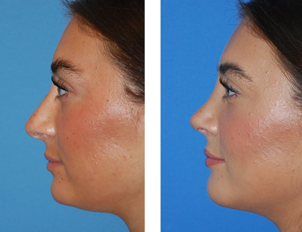 Rhinoplasty Gallery - Patient 5899270 - Image 1