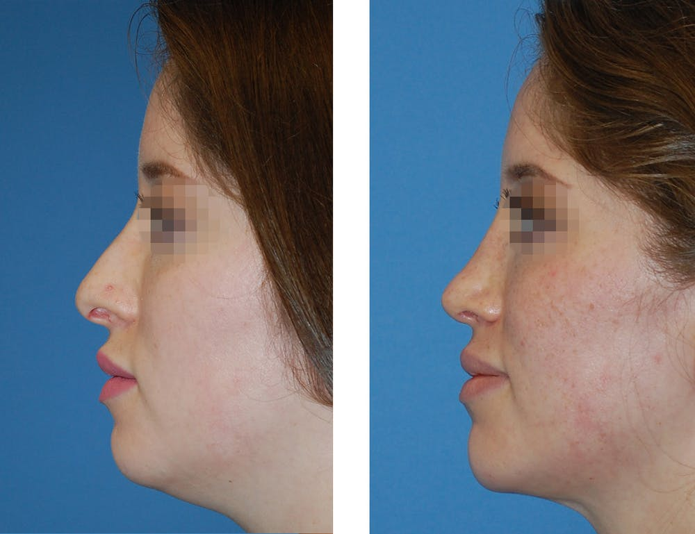 Rhinoplasty Gallery - Patient 5899271 - Image 1