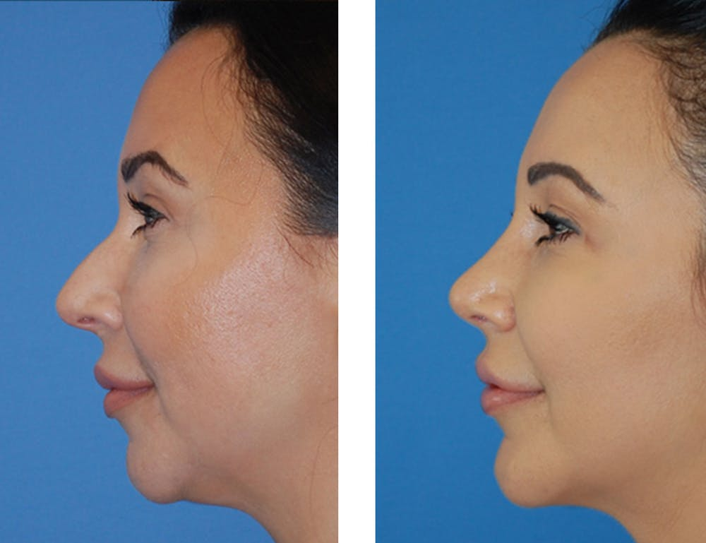 Rhinoplasty Gallery - Patient 5899272 - Image 1