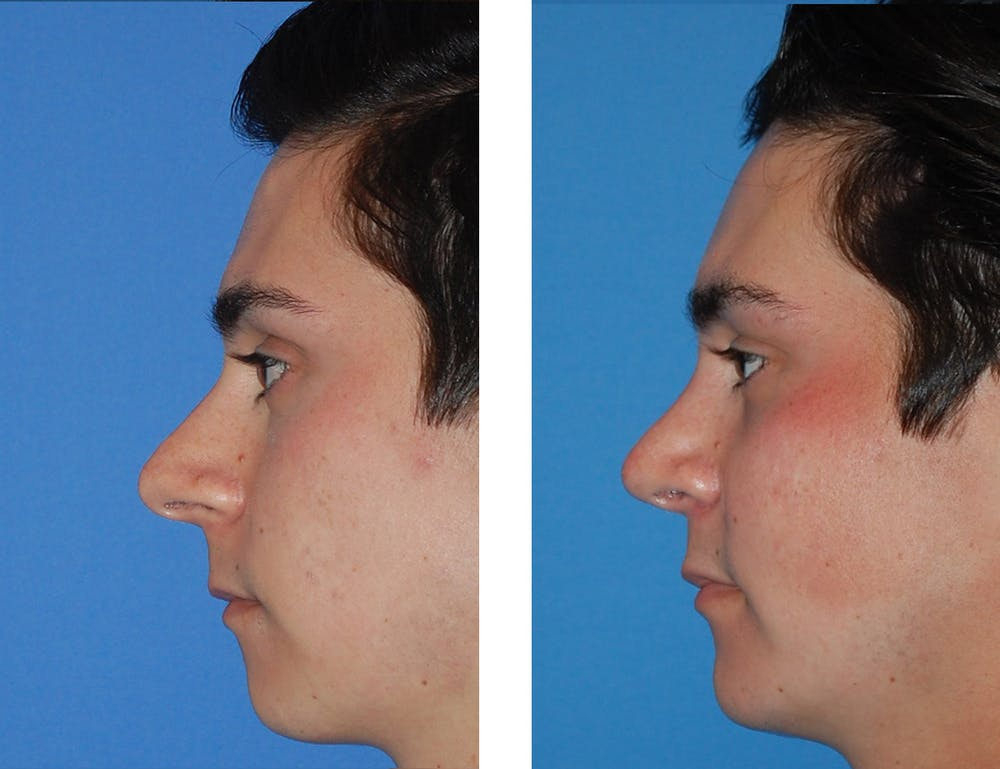 Chin Gallery - Patient 5899280 - Image 1