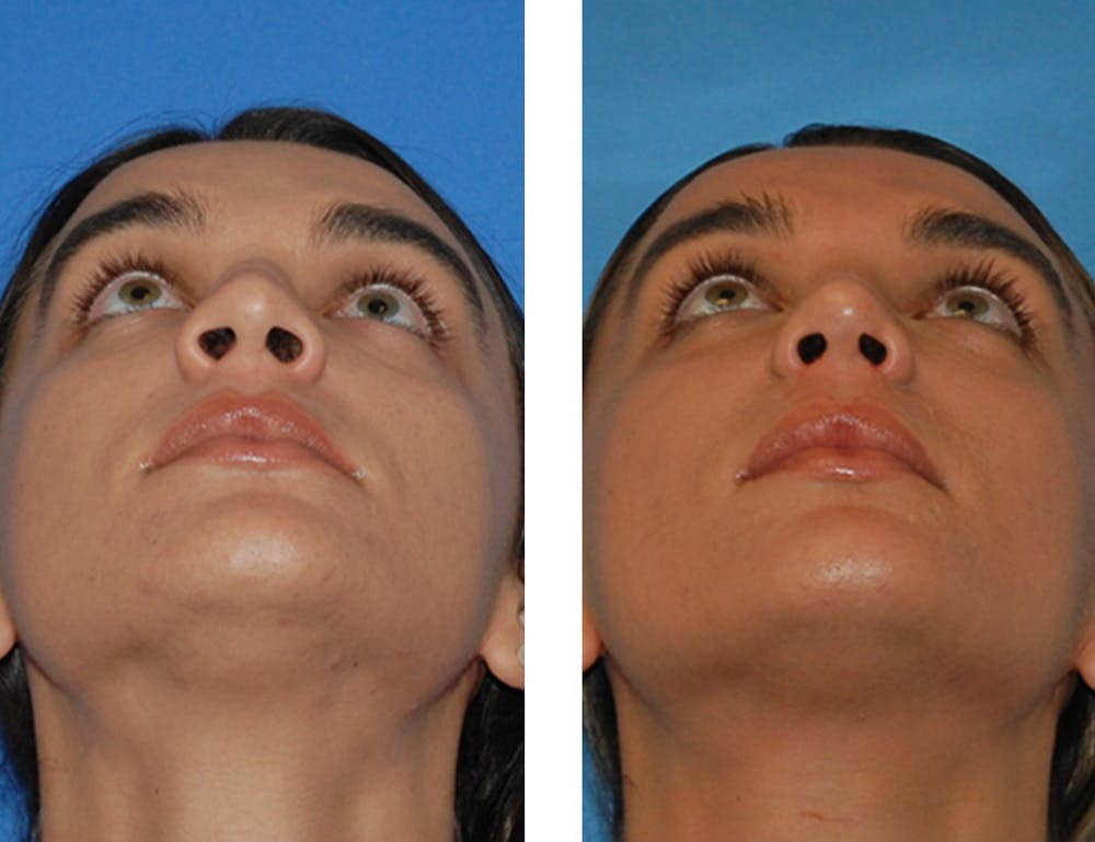 Nostril Reduction Gallery - Patient 5899522 - Image 1