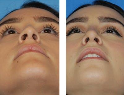Nostril Reduction Gallery - Patient 5899523 - Image 1