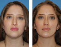 Nostril Reduction Gallery - Patient 5899524 - Image 1