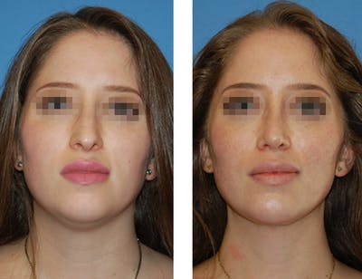 Nostril Reduction Gallery - Patient 5899524 - Image 1
