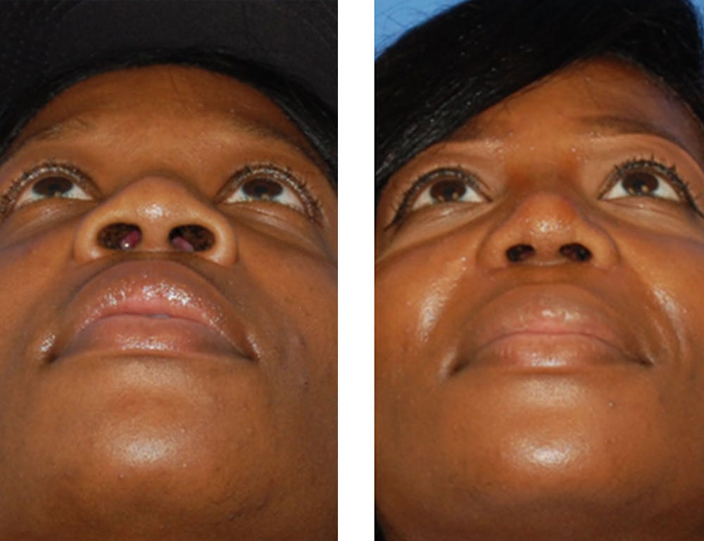 Nostril Reduction Gallery - Patient 7316510 - Image 1