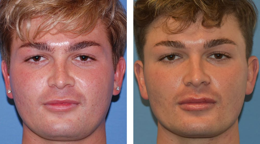 Buccal Fat Pad Removal Gallery - Patient 26207656 - Image 1