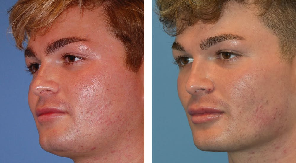 Buccal Fat Pad Removal Gallery - Patient 26207656 - Image 2