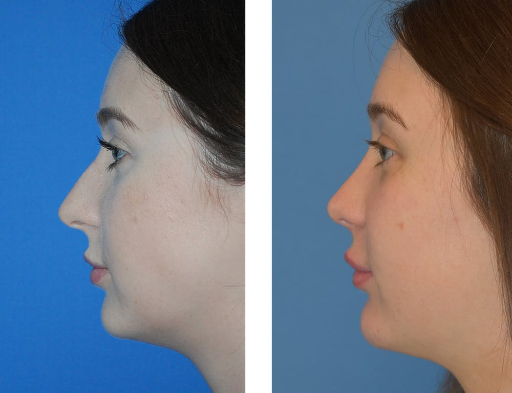 Chin Gallery - Patient 49633230 - Image 1
