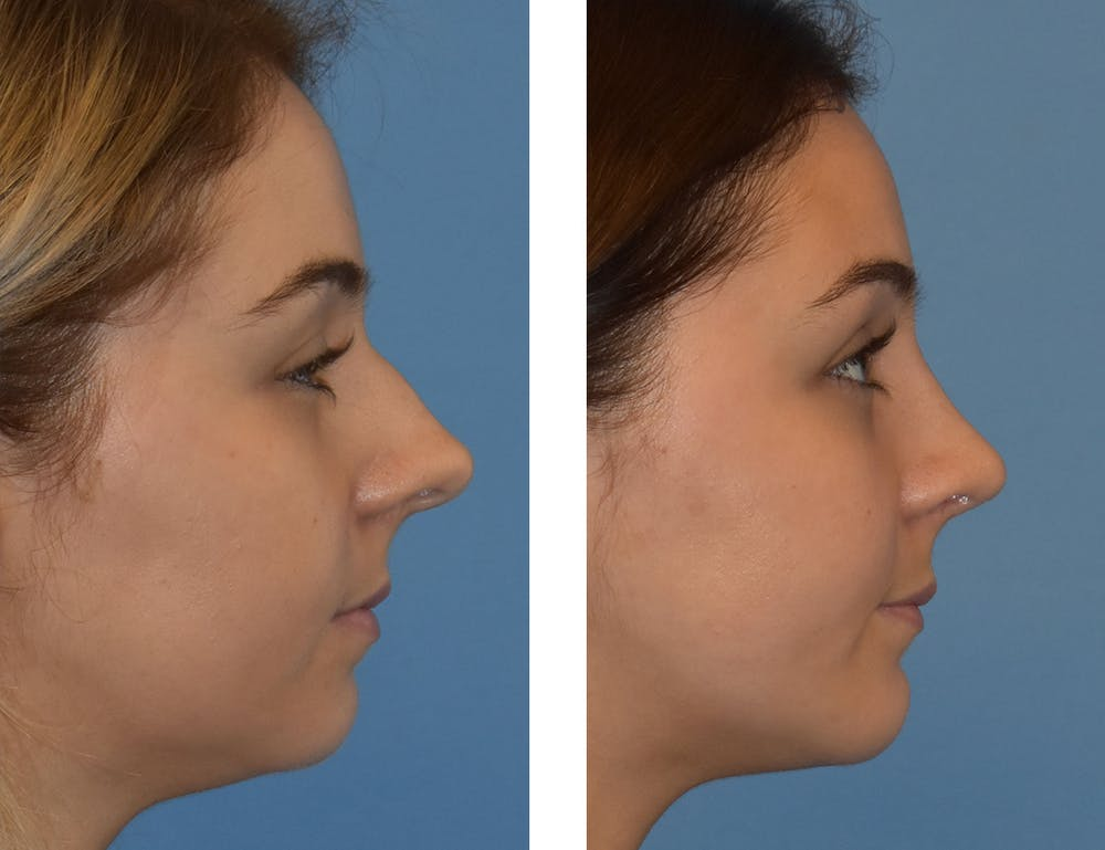Chin Gallery - Patient 49633229 - Image 1