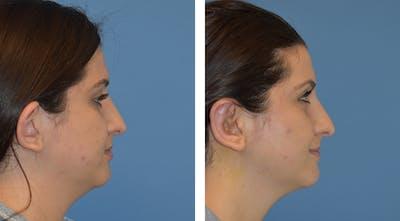Ears Gallery - Patient 49633410 - Image 2