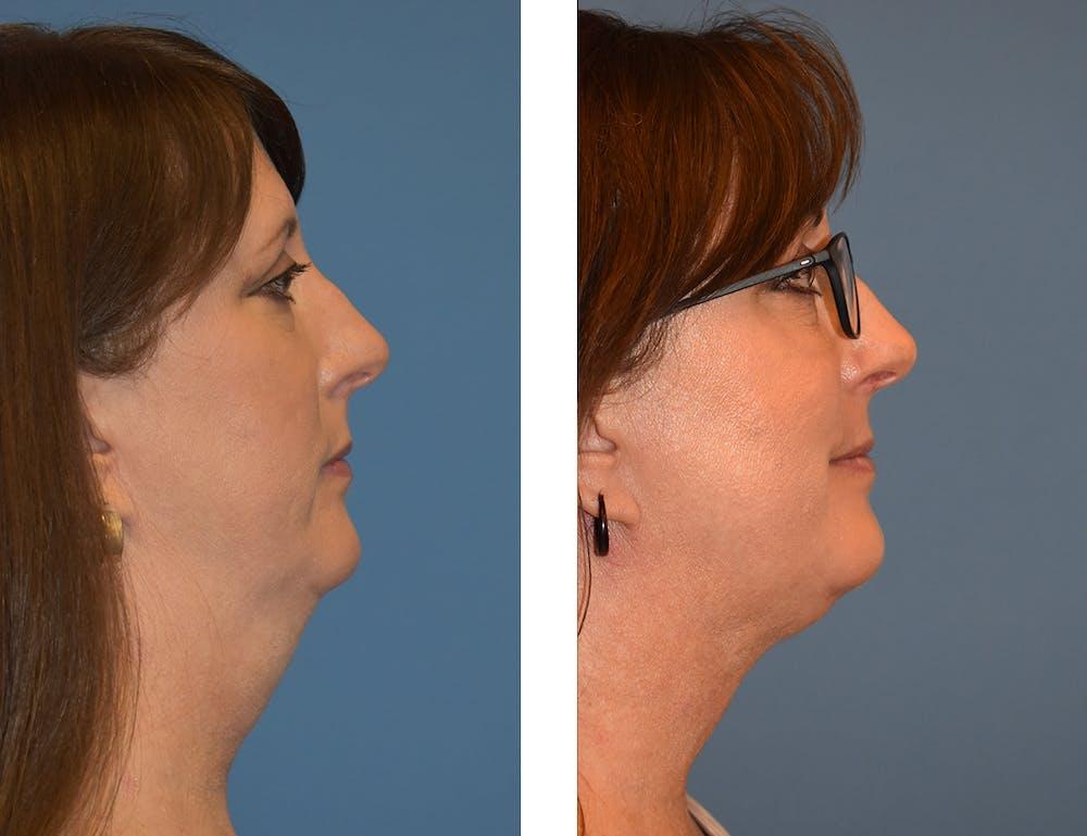 Neck Liposuction Gallery - Patient 49633949 - Image 1