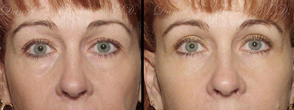 Blepharoplasty Gallery - Patient 1993305 - Image 1