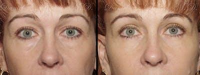 Blepharoplasty Gallery - Patient 1993305 - Image 1