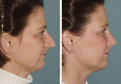Rhinoplasty Gallery - Patient 1993317 - Image 1