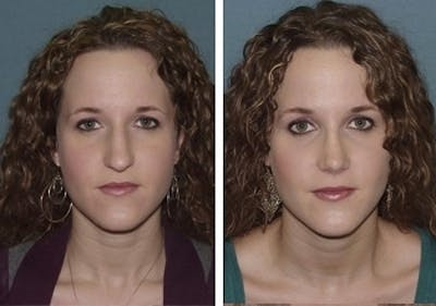 Rhinoplasty Gallery - Patient 1993318 - Image 1