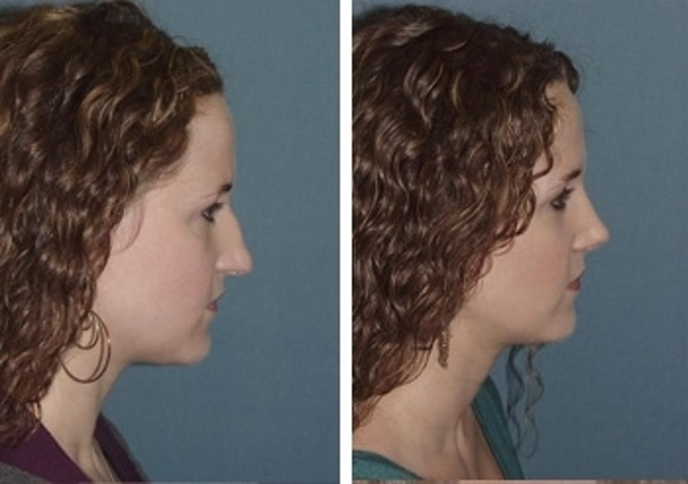 Rhinoplasty Gallery - Patient 1993318 - Image 2