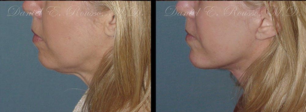 Chin/Mandibular Implants Gallery - Patient 1993368 - Image 1